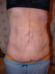2-11-09 - Almost 4 months after open surgery - looking better