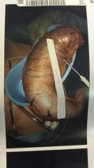 1. Internal stomach removed via Sleeve Surgery