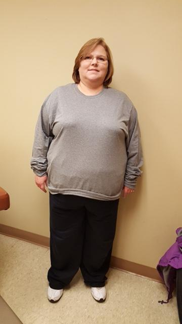 Pre-op at 285 pounds