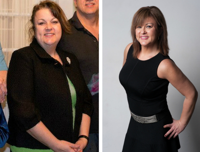 My Bariatric Life before and after plastic surgery Joseph Capella MD.jpg