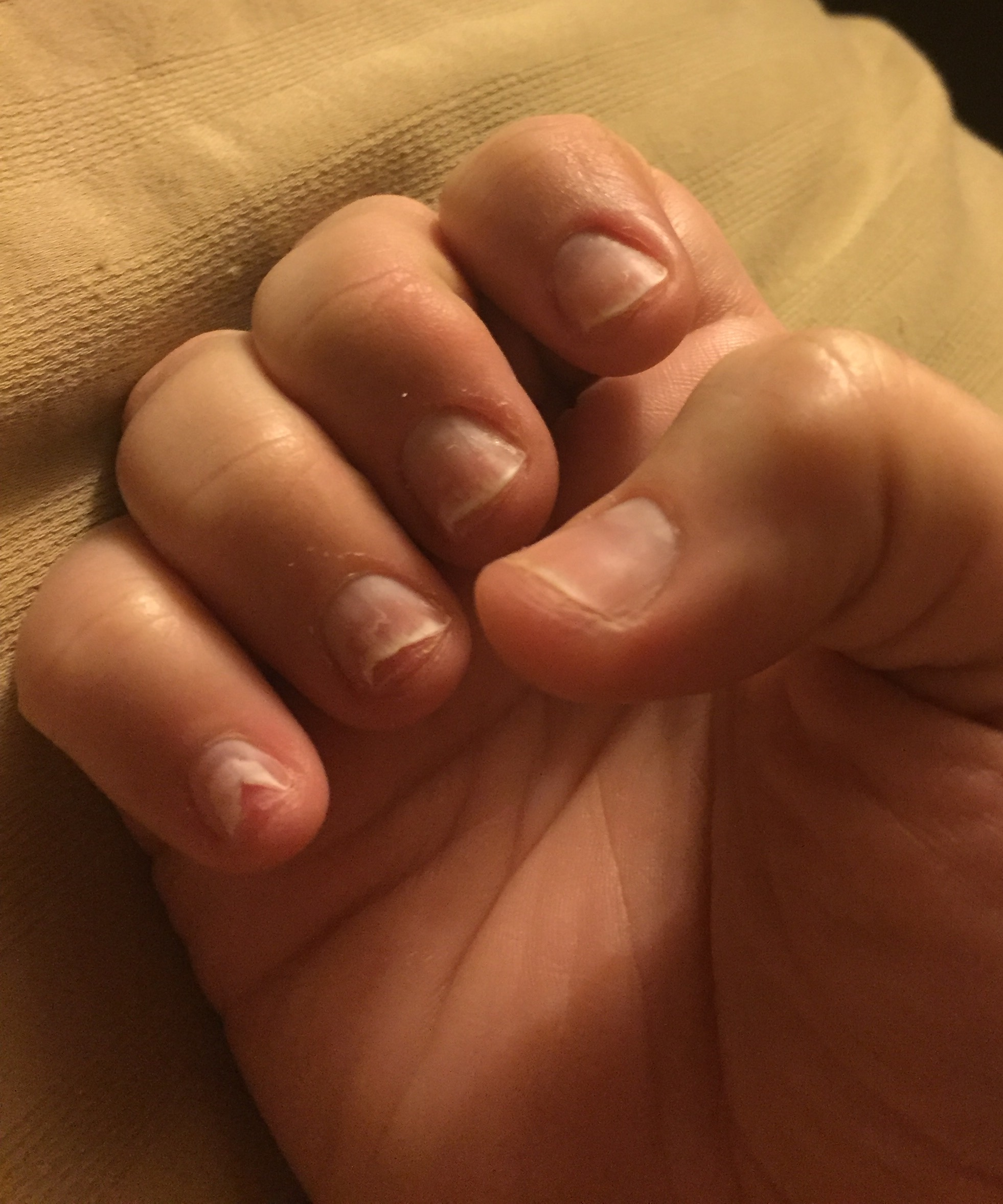 Fingernails lifting - Onycholysis - General Questions - Thinner ...