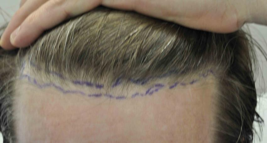 600 graft FUE by Dr  Lindsey McLean VA - Results Posted by