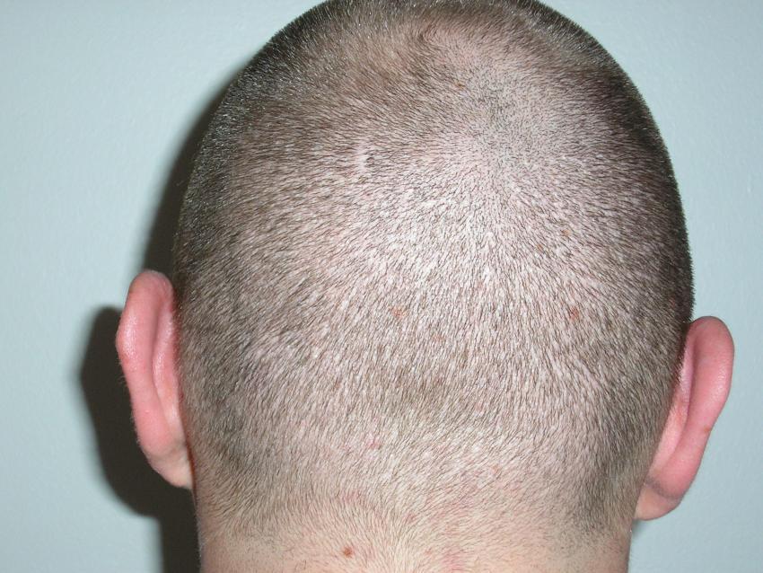 fue hairtransplant
