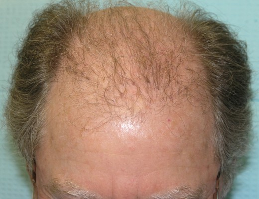 03_plugs-from-old-hair-transplant.jpg.4cd9c3c0b75fcdffa72904cf3f6b0ff4.jpg