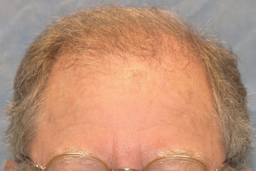 06_after-1st-hair-transplant.jpg.dad855a51906795f8ad7accb13cf6f3c.jpg