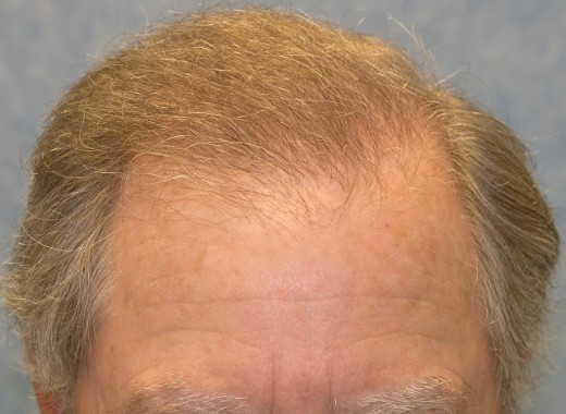 07_after-2nd-hair-transplant.jpg.90d702d0a90a40e308c21cb9cb01c832.jpg