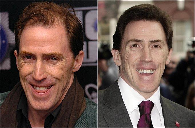 Rob Brydon - Before and After Hair Transplantation