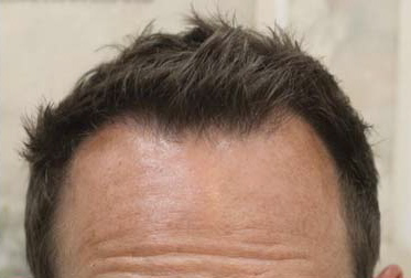 Dr Timothy Carman Review At La Jolla Hair Restoration In San Hair Transplant Experiences And Surgeon Reviews Hair Restoration Network Community For And By Hair Loss Patients