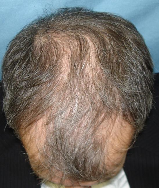 Dr Parsley Results With 1 4 Tab Propecia 0 25mg Daily Results Posted By Leading Hair Restoration Clinics Hair Restoration Network Community For And By Hair Loss Patients
