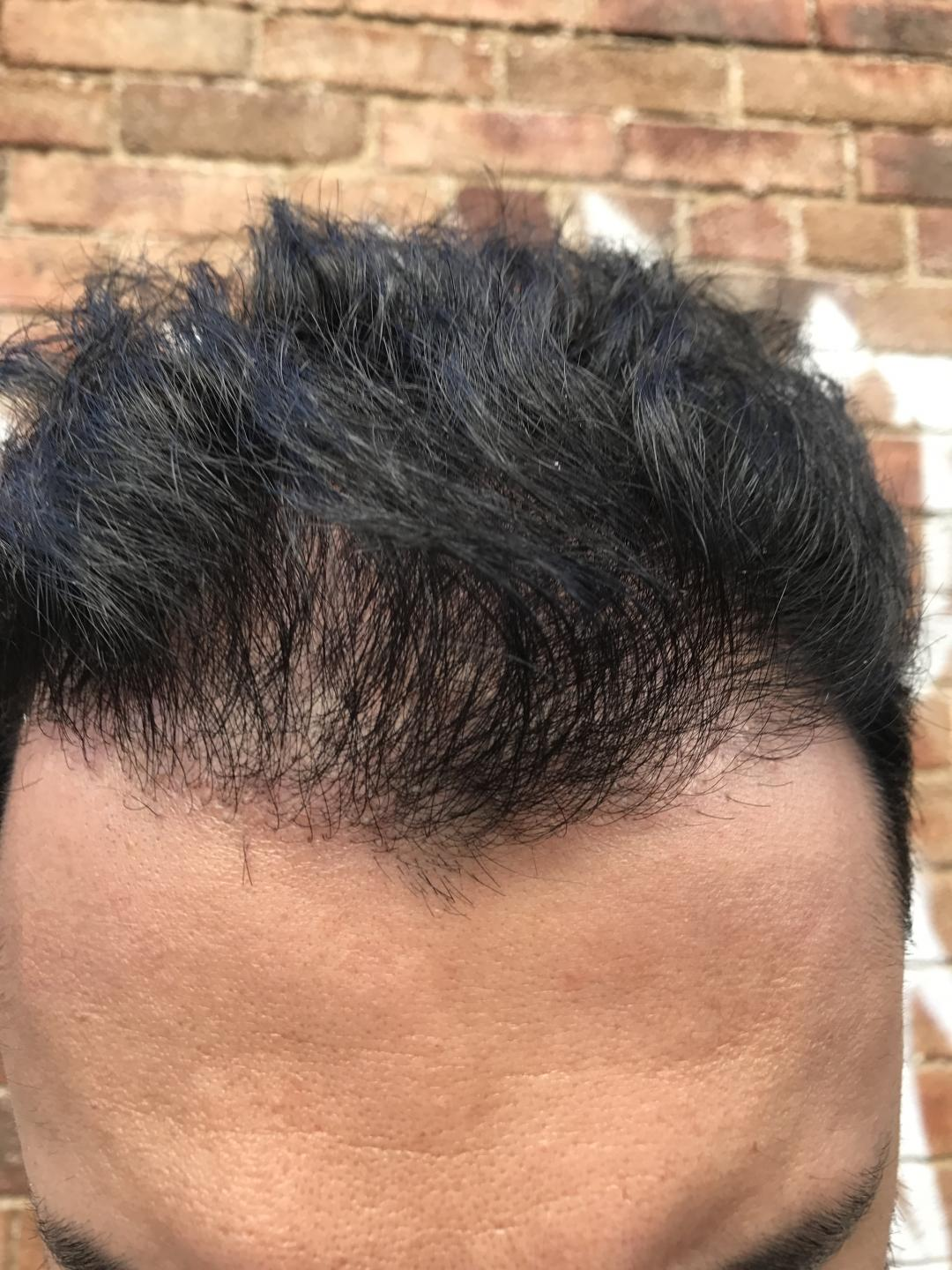 My Bad Experience With Dr Resul Yaman In Turkey Hair Transplant