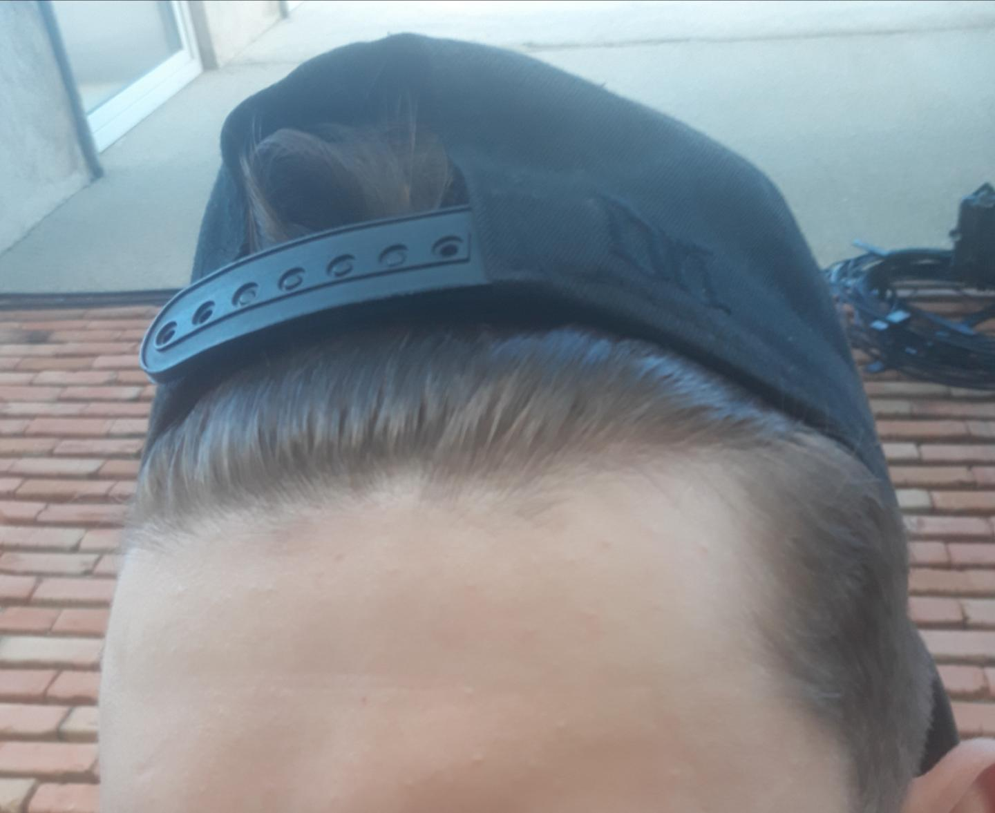 Am i going to get bald? (recending/mature hairline) - Open ...