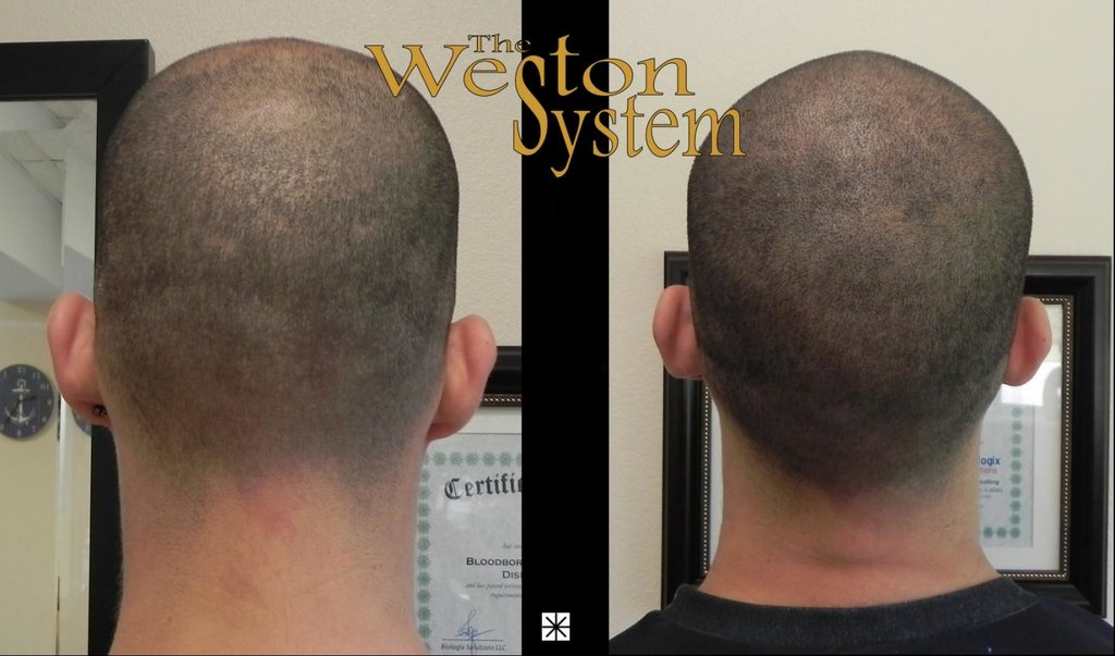 scalp-micropigmentation-california.thumb.jpg.700114a08b2b84819911f6e92bfd23e5.jpg