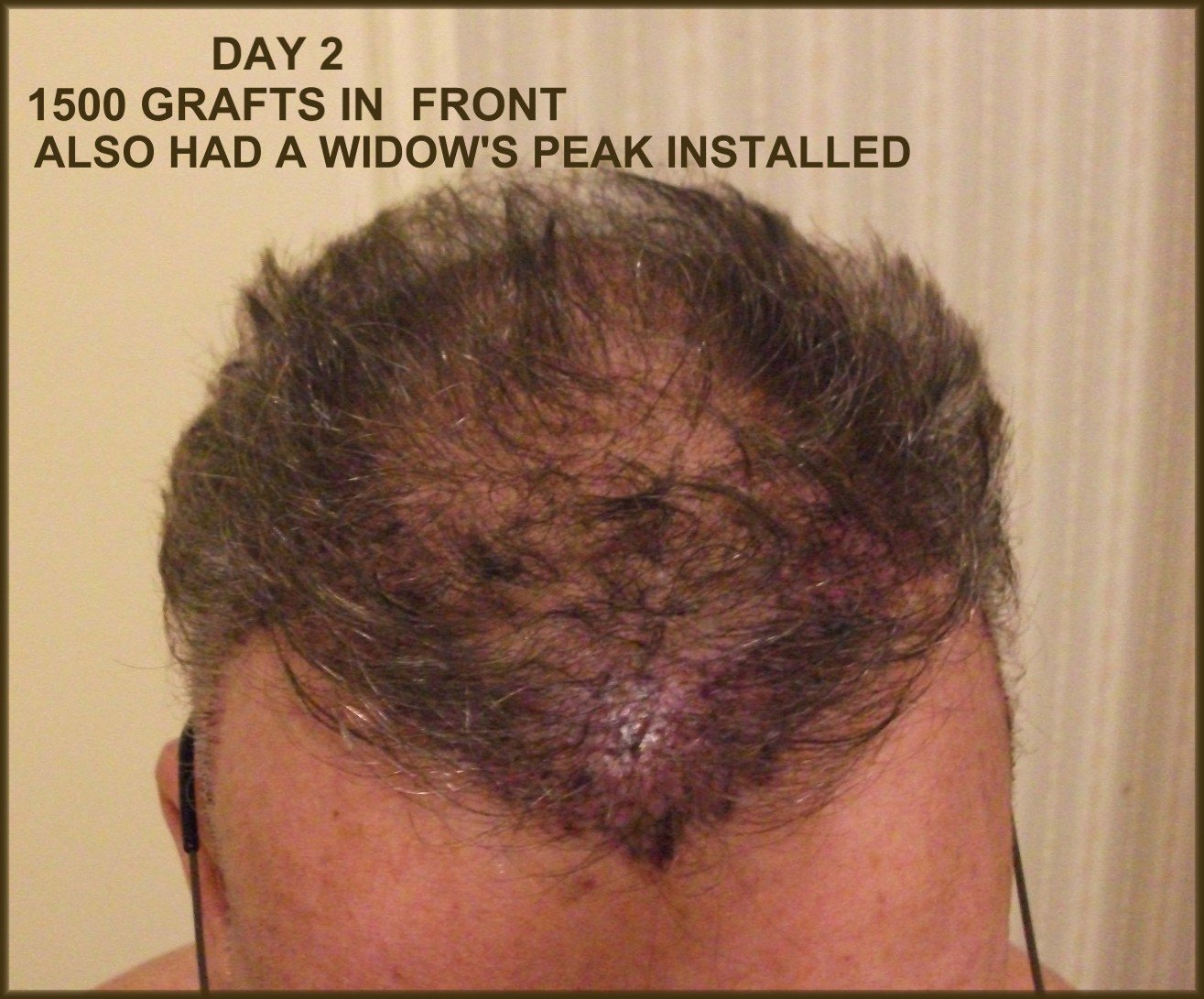 2500 Grafts With Dr Nader - Hair Transplant Experiences and
