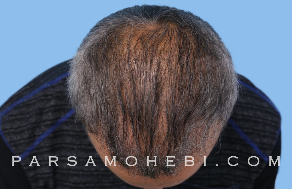 Top View After Hair Transplant.JPG