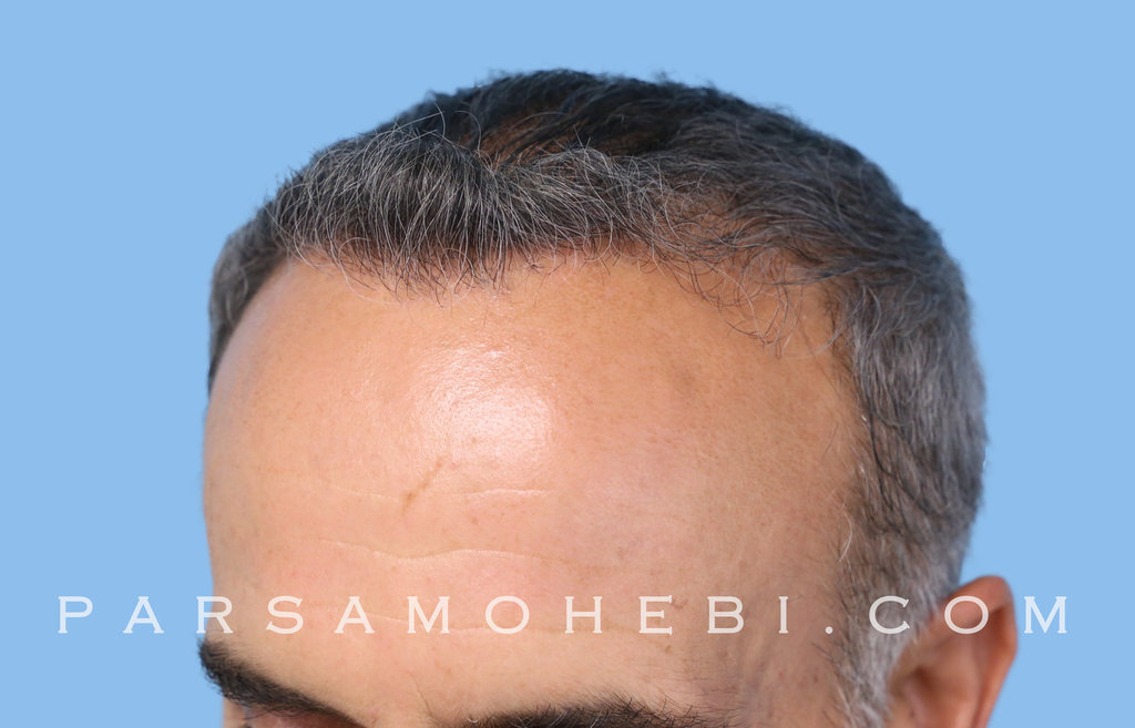 Left Side View After Hair Transplant.JPG