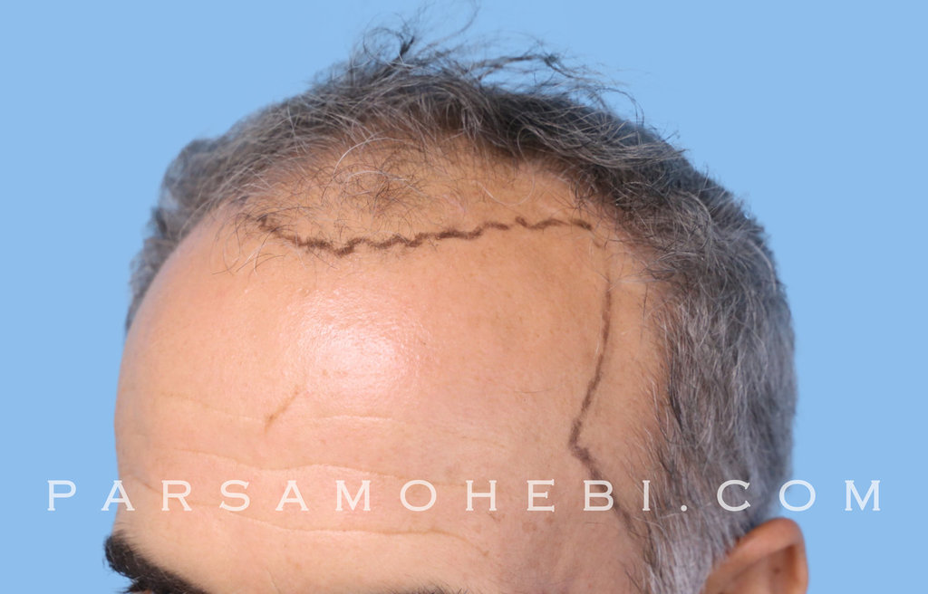 Left Side View Before Hair Transplant.JPG