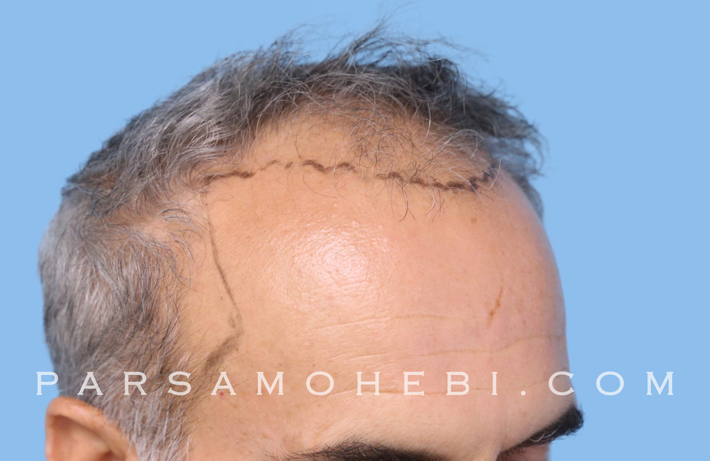 Right Side View Before Hair Transplant.JPG