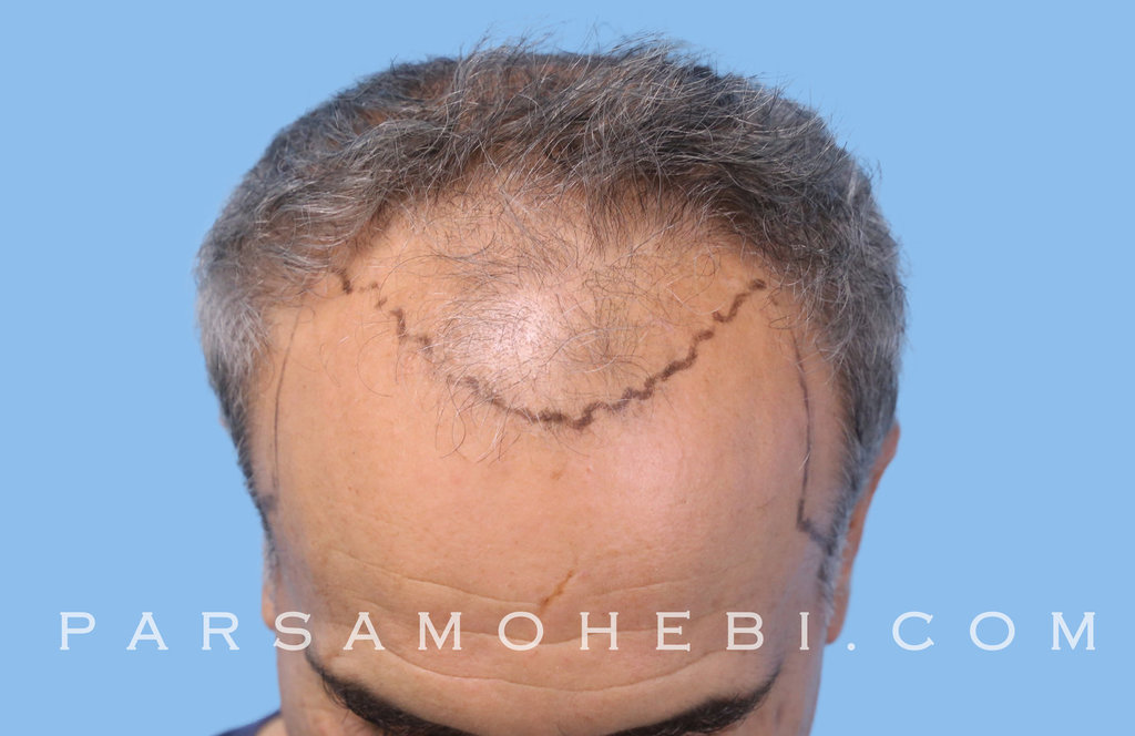 Angle View Before Hair Transplant.JPG