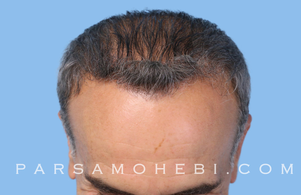 Angle View After Hair Transplant.JPG