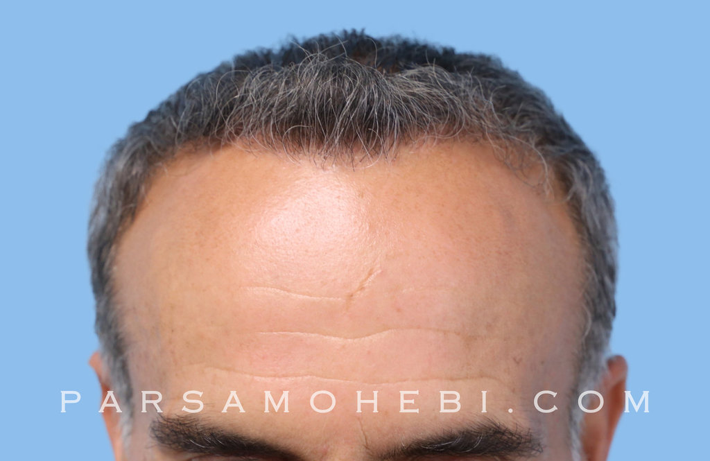 Front View After Hair Transplant.JPG