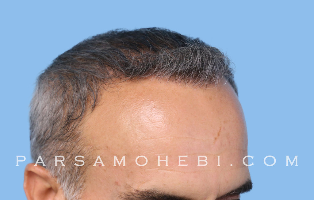 Right Side View After Hair Transplant.JPG