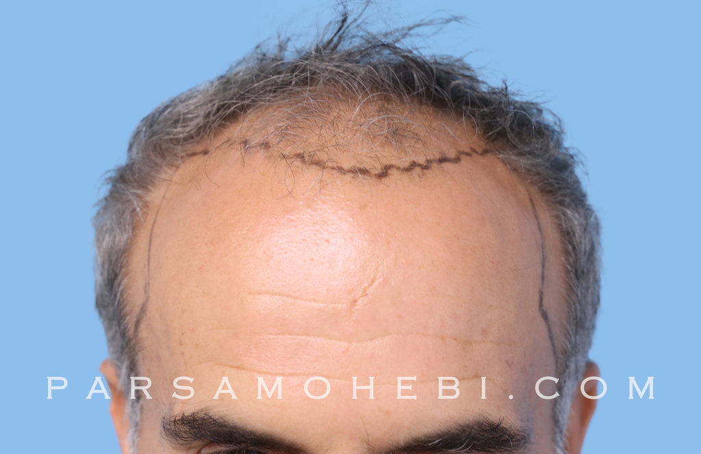 Front View Before Hair Transplant.JPG