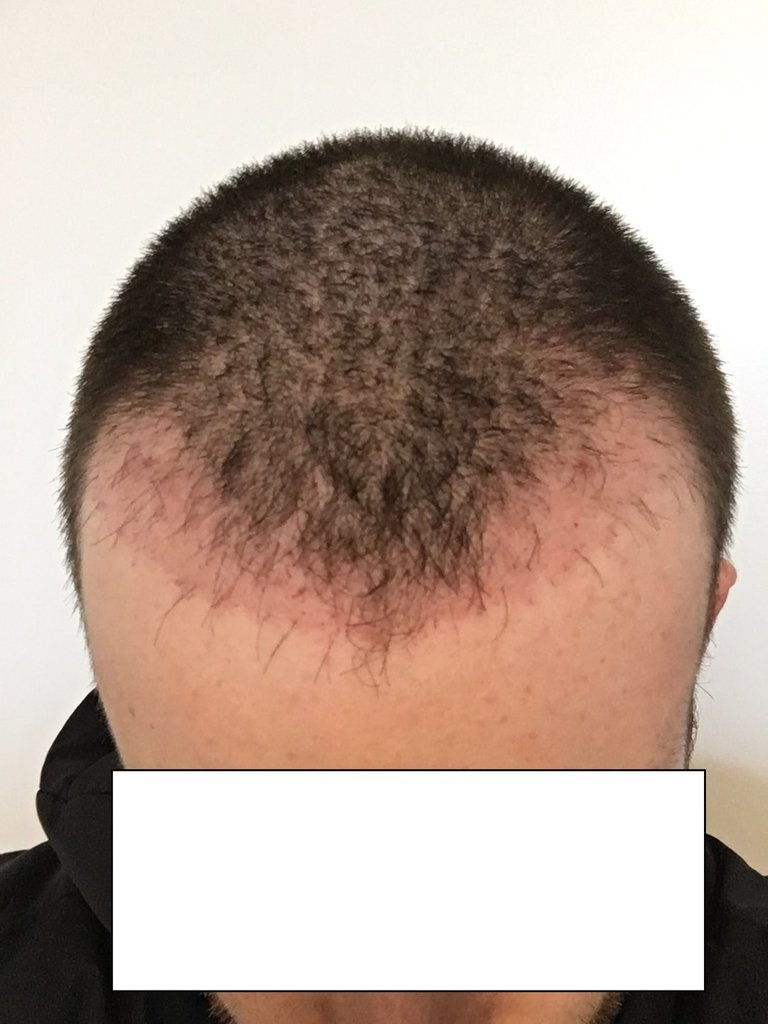 hair 2 month - Copy.jpg