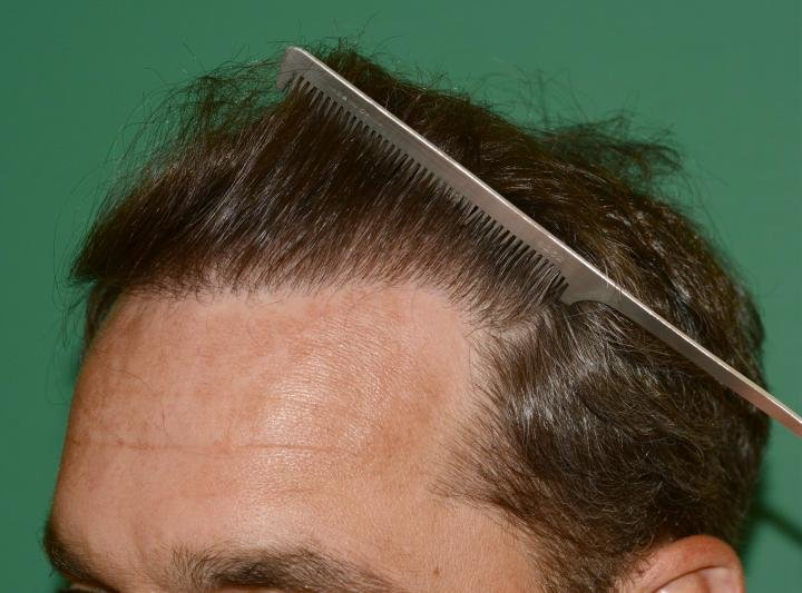 1140738813_hairlinecomb-backleft.jpg.00a5730aa5bbf55a420357ab79add684.jpg