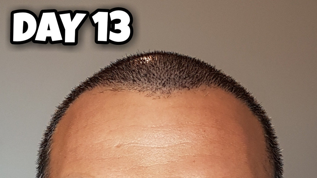 Day 13 Hairline.jpg