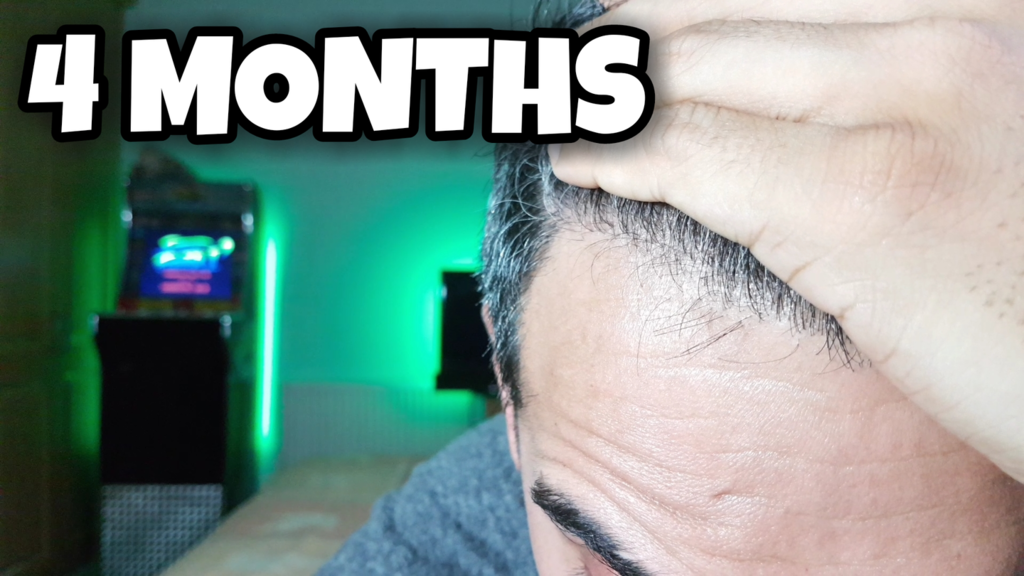 4 Months Hairline.png