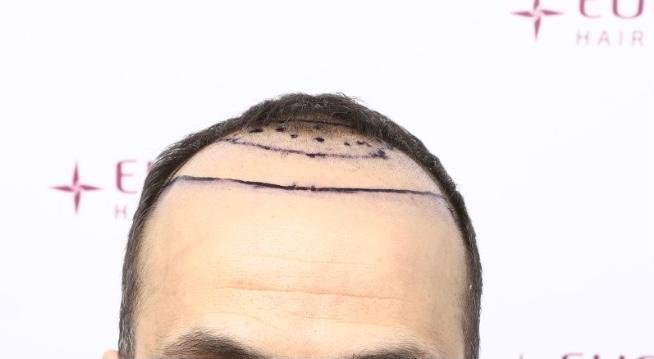Hairline front 1.jpeg