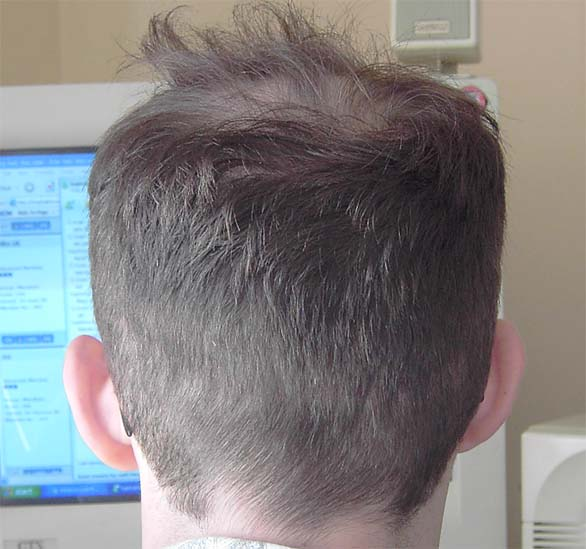 Has My Scar Stretched? - Hair Transplants - Stop Hair Loss Now