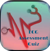 ECG Assessment Quiz.jpg