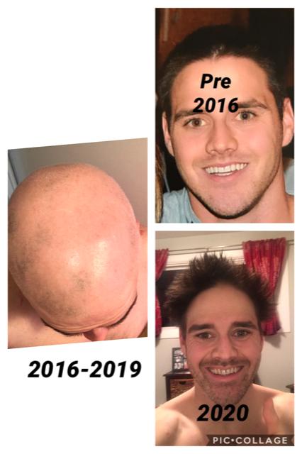 Alopecia1.png.ca16d3f0e7841bf3ed3bbe6f7d3fd54f.png