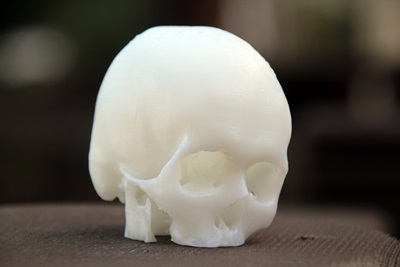 How to Create 3D Printable Models from Medical Scans in 30