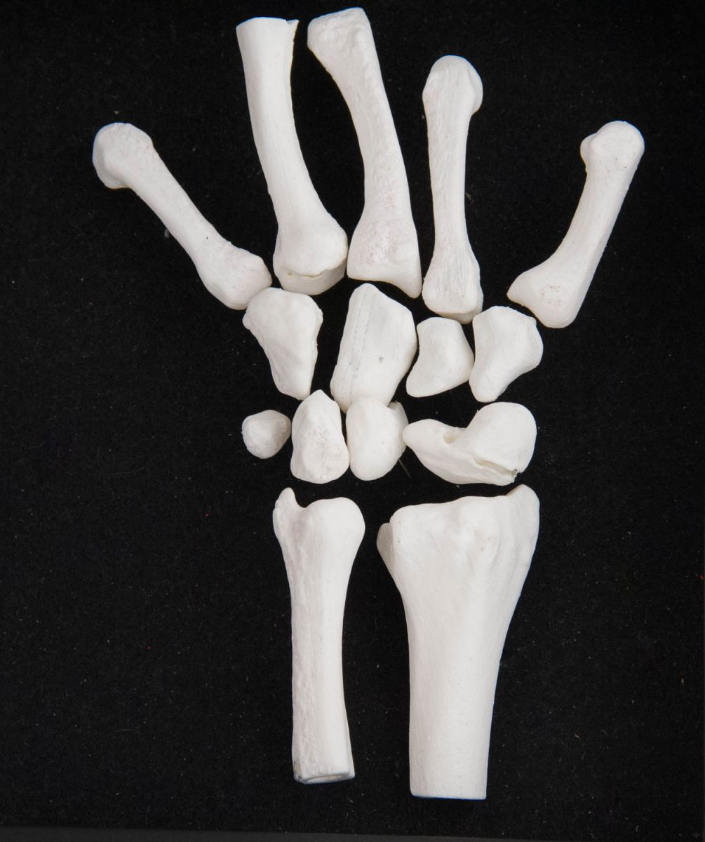 3D printed scaphoid fracture