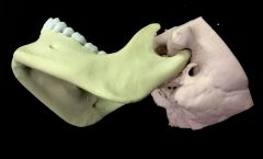 Mandible and temporal bone articulation