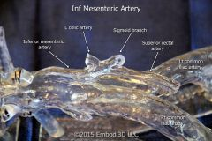 Inferior mesenteric arteries