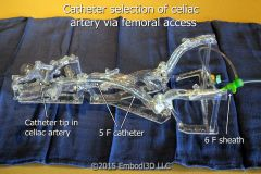 Catheter selection of celiac artery