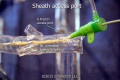 Femoral artery sheath access
