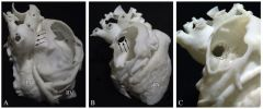 3D printed model of a congenital heart defect