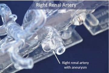 07   Right Renal Artery