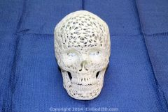 Wireframe skull model created from CT scan