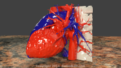 Heart and thoracic aorta created from CT scan