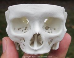 Skull base created from CT scan
