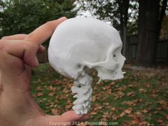 Skull and cervical spine created from CT scan