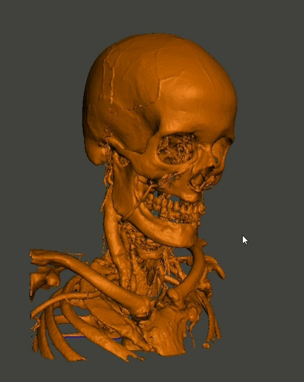 Creating 3d Printable Medical Models And Stl Files For Free Online