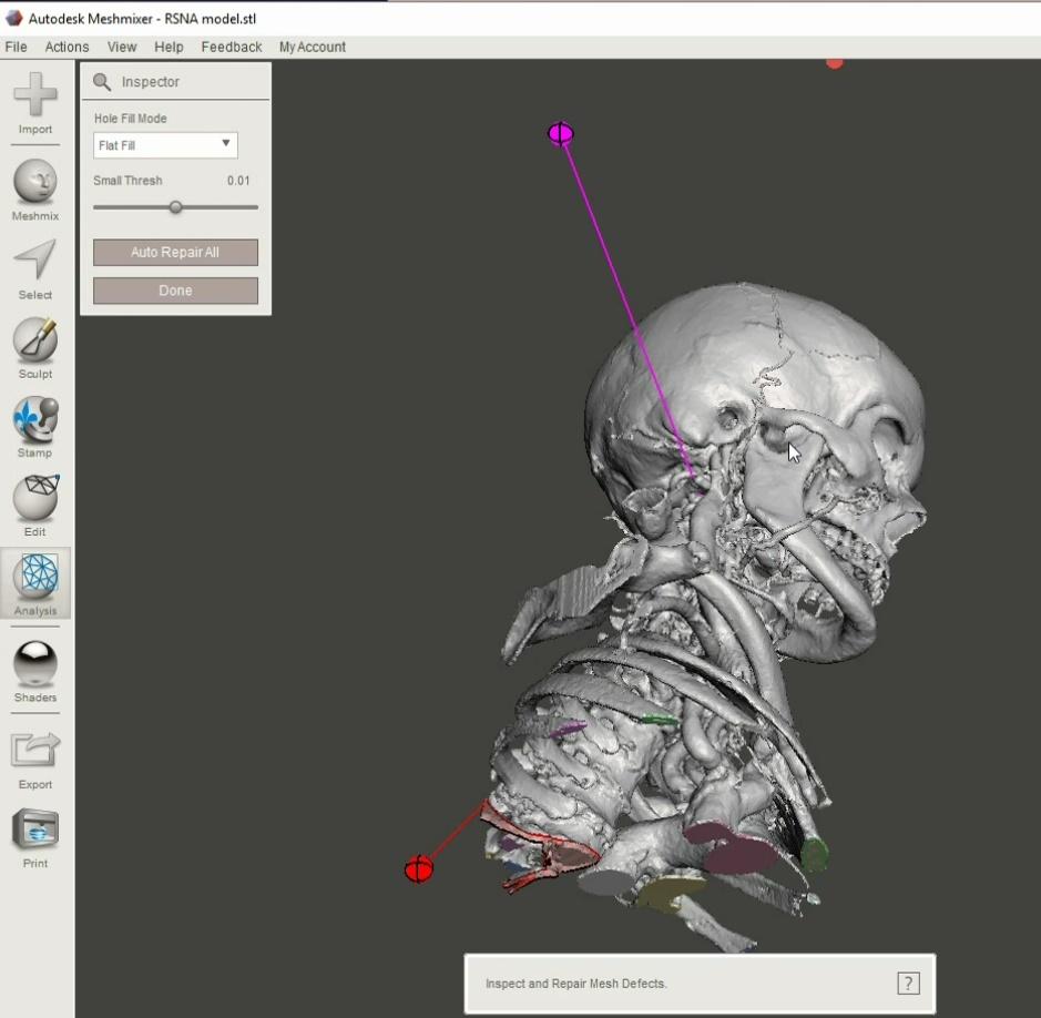 3D Printing in Medicine - embodi3D.com