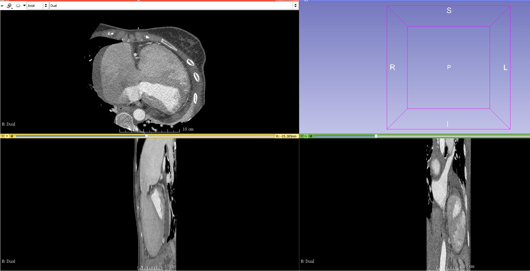 Stretched images in 3D Slicer - Software - embodi3D com