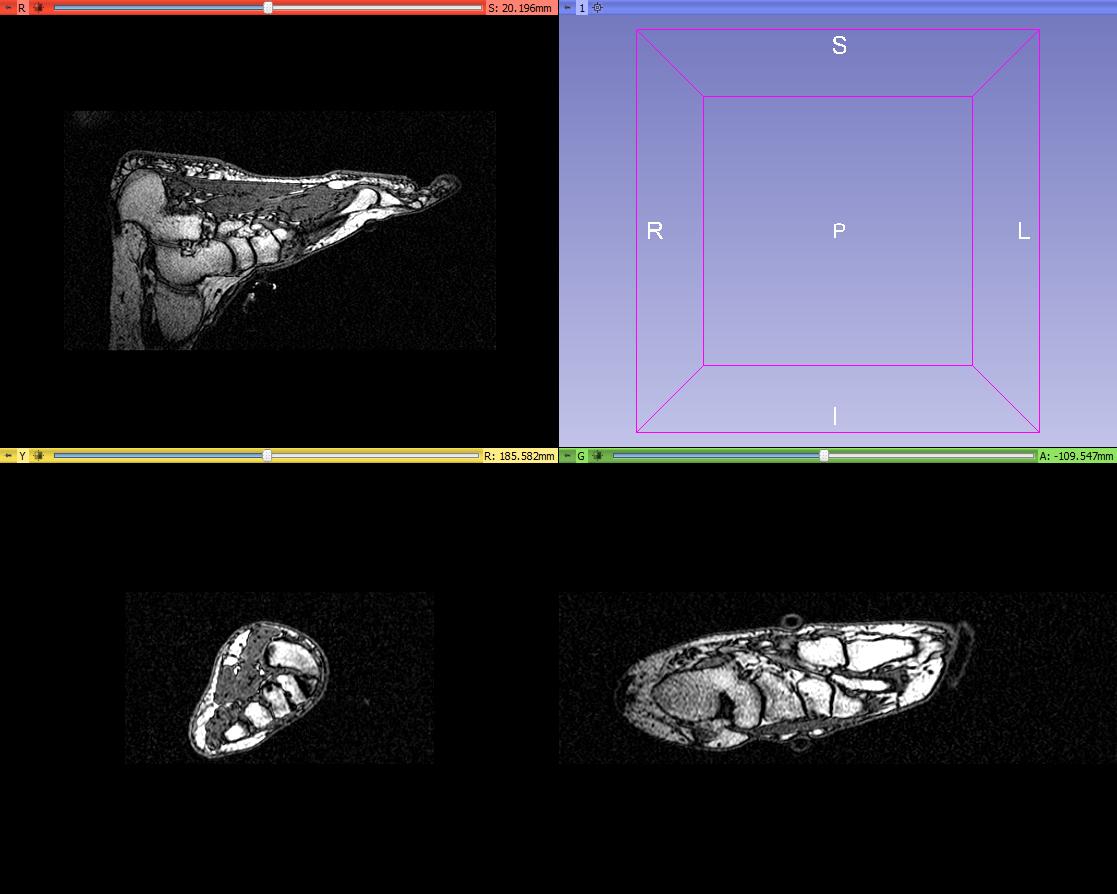 Segmentation of a foot MRI scan - Mike at Medical Models - embodi3D.com